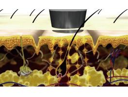 エレクトロポレーションによって、有効成分が肌の奥へ導入されるイメージ