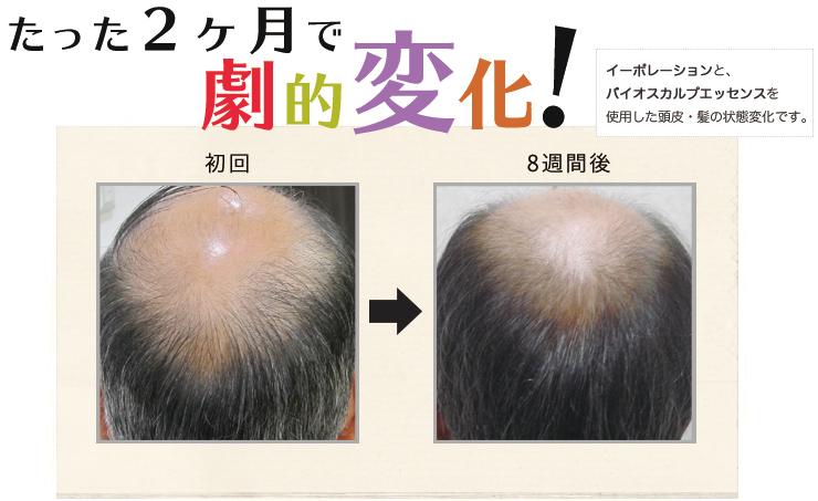 イーポレーション・スカルプシリーズと、バイオスカルプエッセンスを使用した頭皮・髪の状態変化です